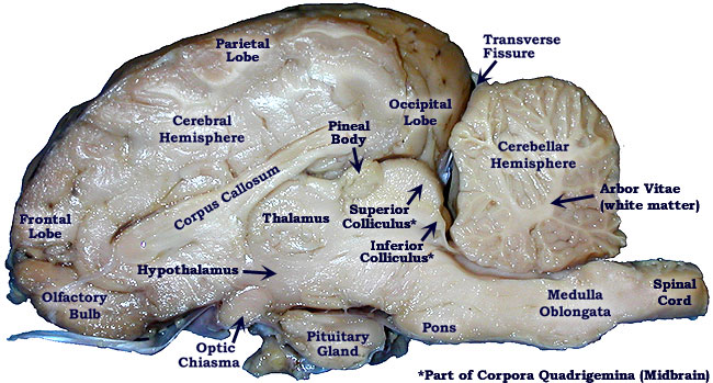 Pickled Sheep Brain-mid-saggital view