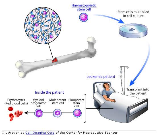 bone marrow stem cell graphic