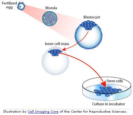 graphic of Blastocyst with inner cell mass and Petri dish