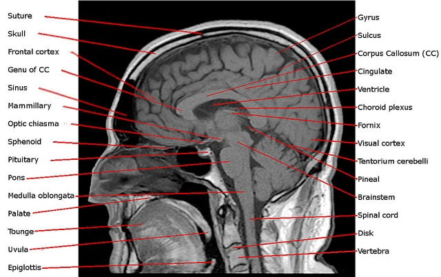 17 Questions To Study For A Brain Anatomy Quiz In AP Biology